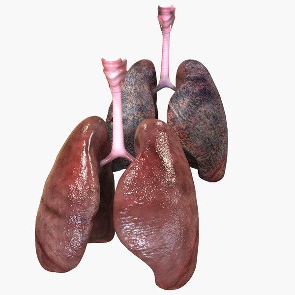 lungs smoker obj