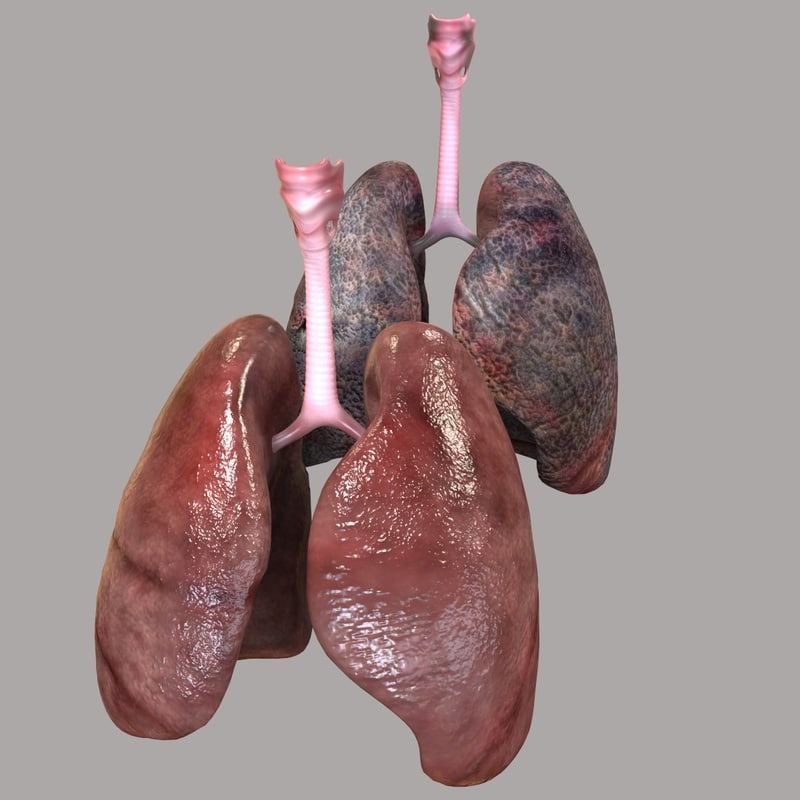 lungs smoker obj