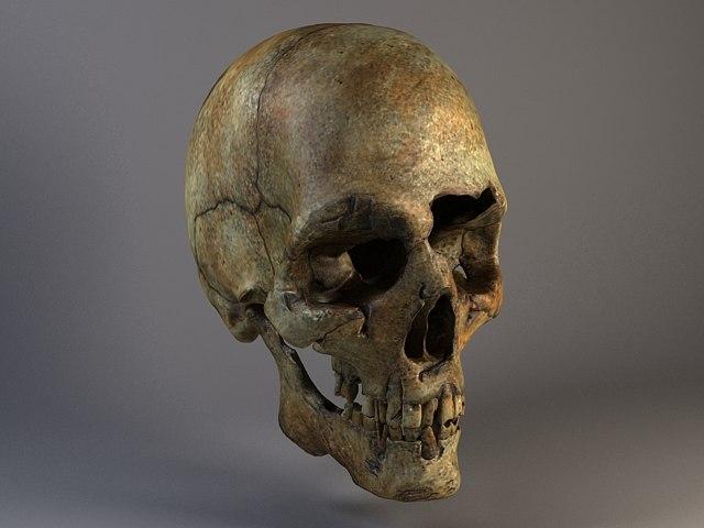 Man Skull Cracked