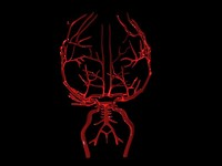 brain arteries 3ds