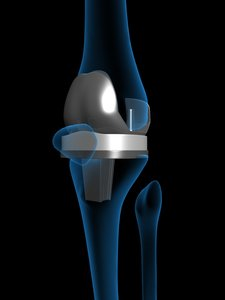 artificial knee replacement 3d model