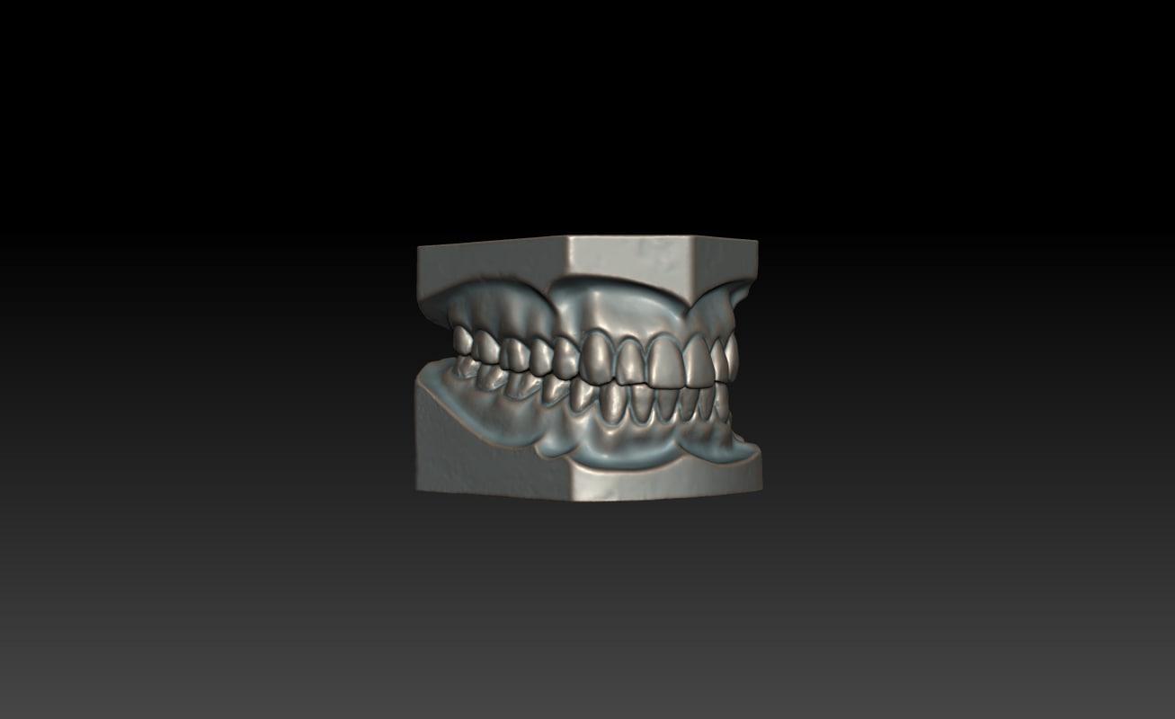 3d dental impressions model