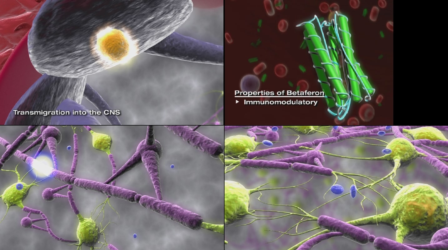 max multiple sclerosis betaferon