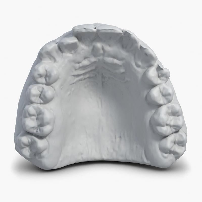 3d model gypsum mould teeth scan