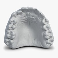 Gypsum Mould Of Teeth 3D Scan