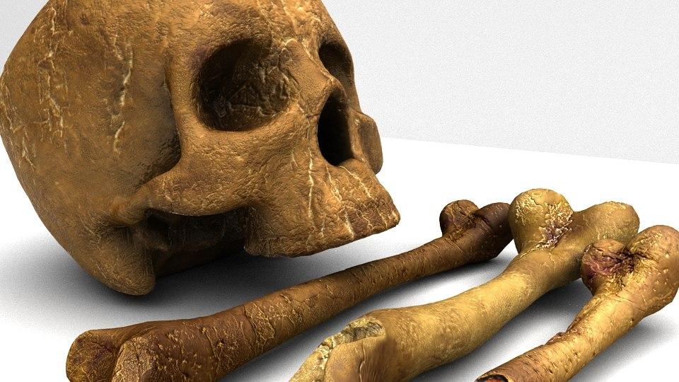 set bones ma