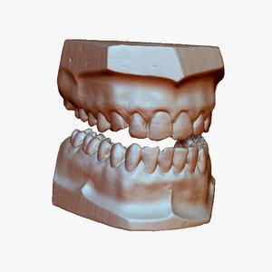 gypsum teeth 3d max