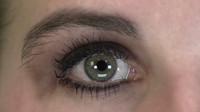 Eye Normal
