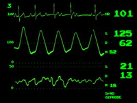 ECG screen