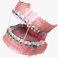 Permanent Dentition with Braces