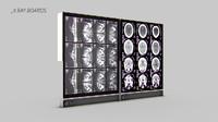 X-Ray Boards Monitor