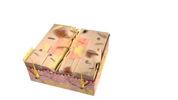 3d model of skin damage