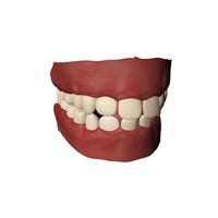 3d teeth gums