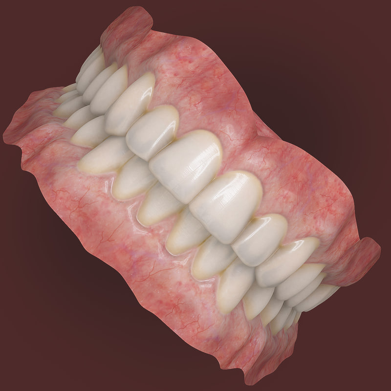 realistic orthodontics medicine 3d model