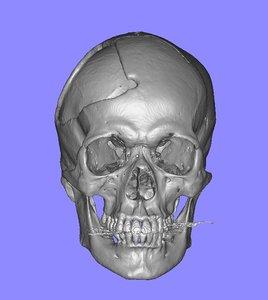 3d skull defect ct