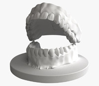 teeth denture 3d model