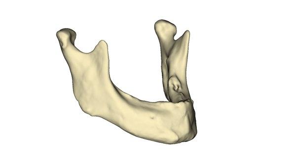 3d edentulous human mandible