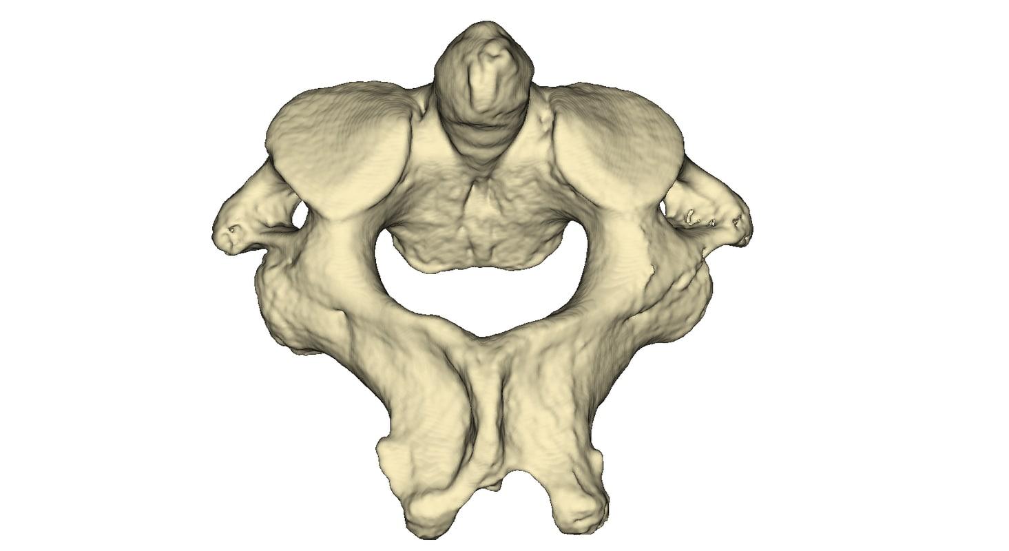 3ds max human vertebra c2 axis