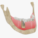 tooth implant 3D models