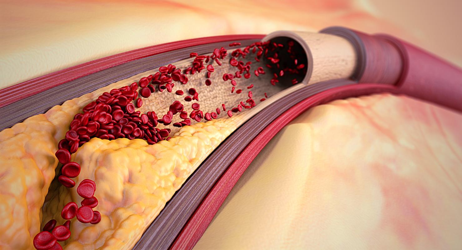max artery atherosclerosis