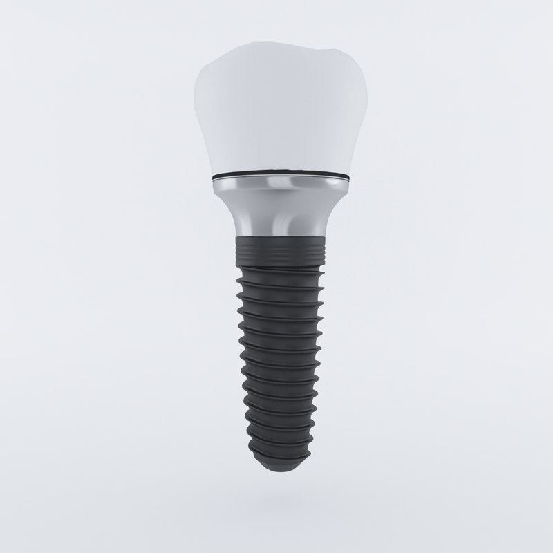 maya dental dent implant