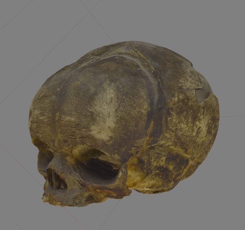 3d skull fetus model