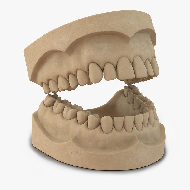 3d dental mold model