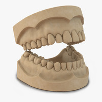 3d dental mold model