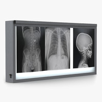 XRay Light Box
