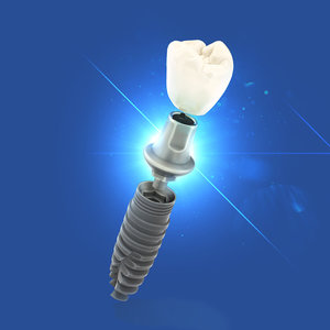 dental implant 3d max