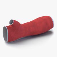 Orthopedic Cast Arm