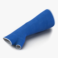 3d blue fiberglass cast arm