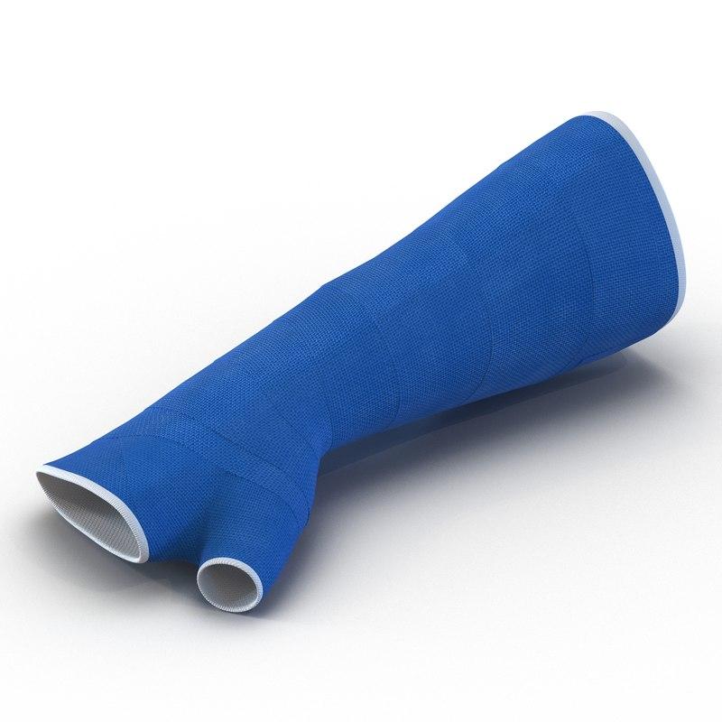 3d blue fiberglass cast arm