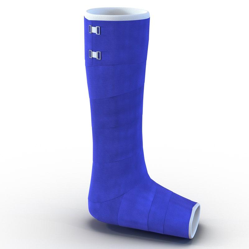 max blue fiberglass cast leg