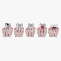 3d root canal procedure