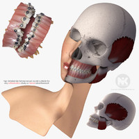 mouth orthodontics dental v4 max