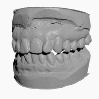 Teeth 3D Scan Female