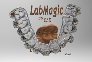 free digital orthodontic dental 3d model
