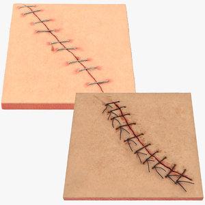 3d staples sutures