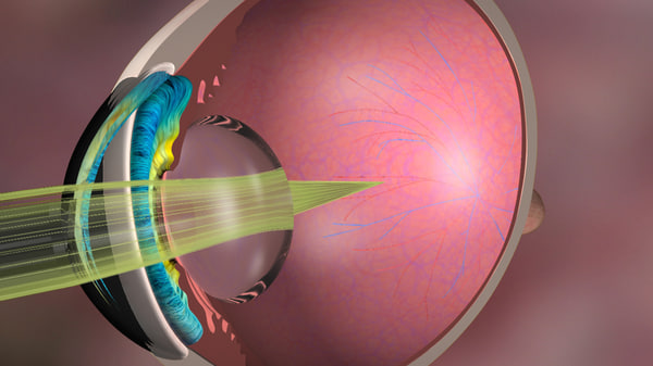 medical illustration myopia 3d max