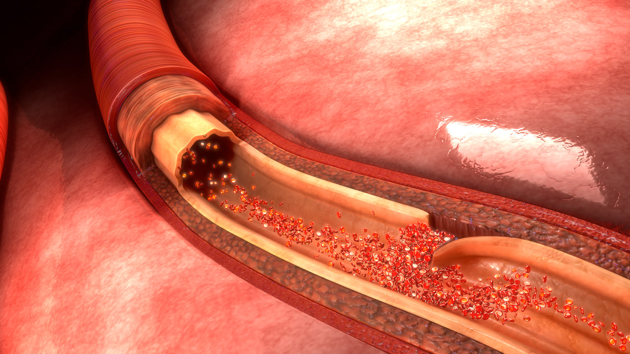 3d artery dissection animation model