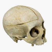 3d human skull scan