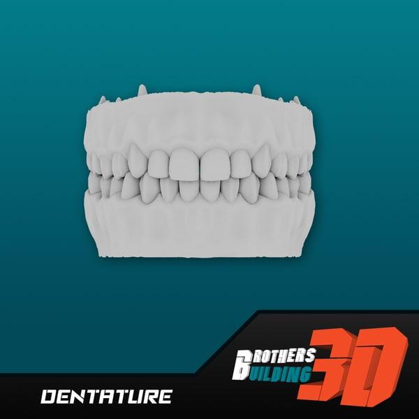 3d model dentature