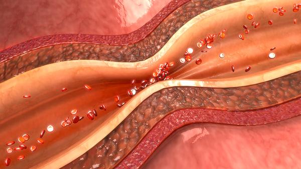 3d coronary artery spasm model