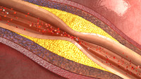 atherosclerosis 3d model
