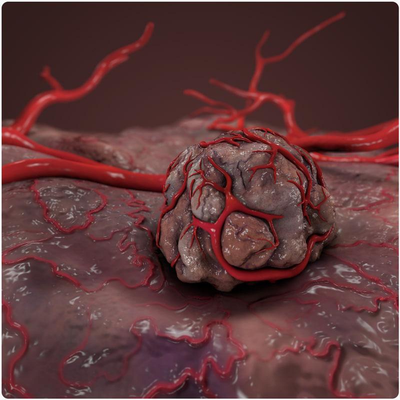 tumor vessel c4d