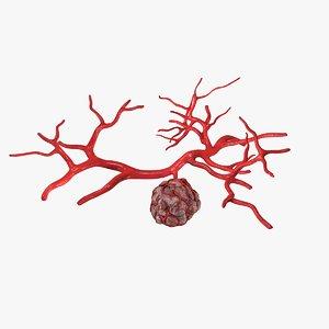 3d c4d tumor vessel