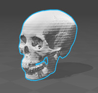 20 skulls data from CT scan (Asian)
