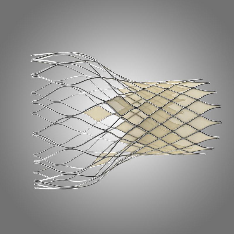 transcatheter aortic implant 3d model