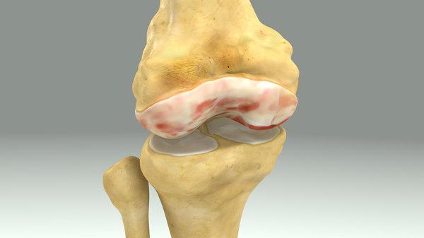 damaged knee joint obj